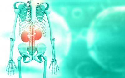 The Vitamin C Kidney Stones Misconception