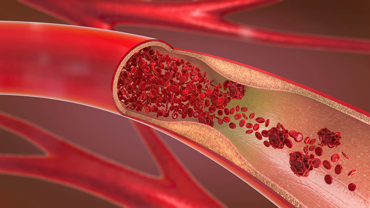 3d illustration of arterial plaque that could contain oxidized cholesterol